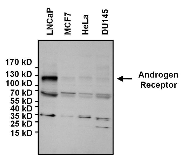 Androgen Receptor Antibody (MA5-13423) in Western Blot