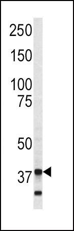 Annexin V Antibody (PA5-13523) in Western Blot