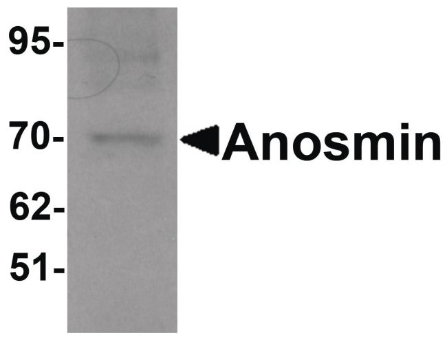 Anosmin Antibody (PA5-21149) in Western Blot