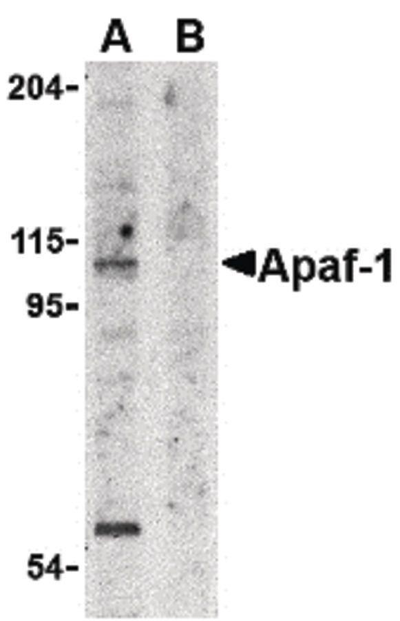APAF1 Antibody (PA5-19893) in Western Blot