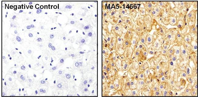Apolipoprotein A1 Antibody (MA5-14667) in Immunohistochemistry (Paraffin)