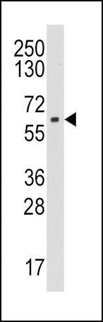 Aromatase Antibody (PA5-14175)