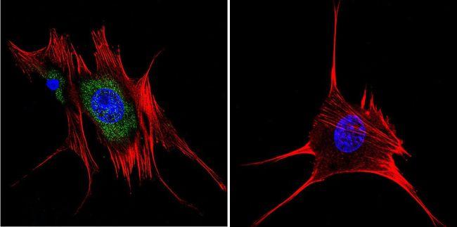 AHR Antibody (MA1-514)