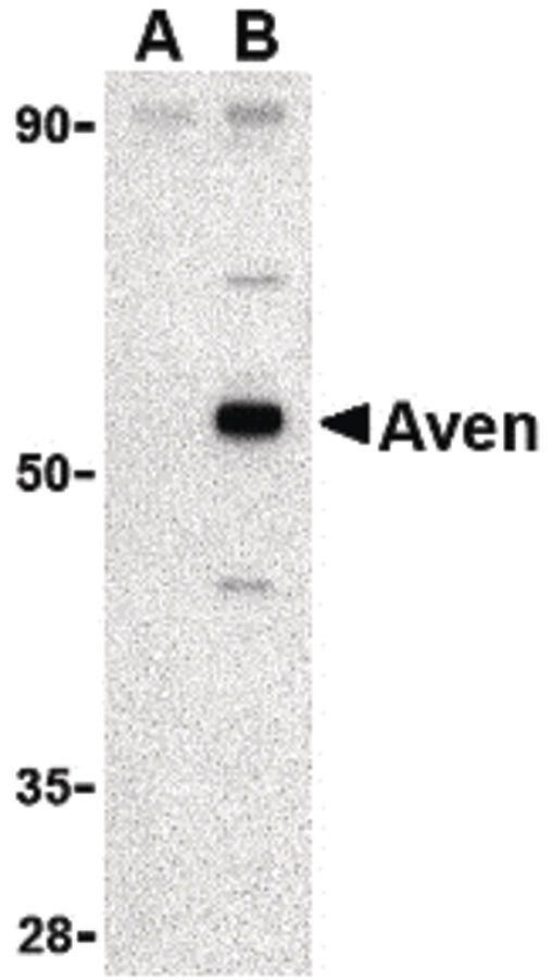AVEN Antibody (PA5-20287) in Western Blot