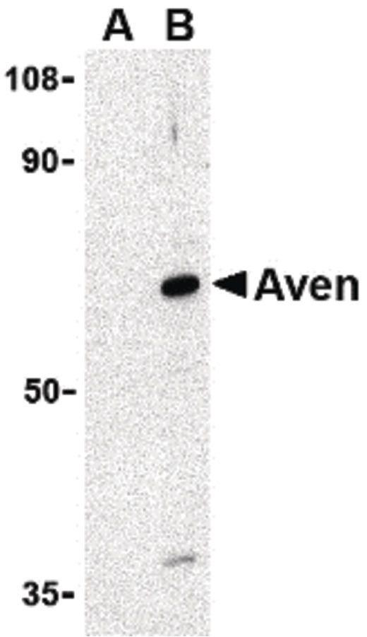 AVEN Antibody (PA5-20288) in Western Blot