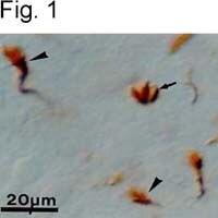 Axonal Growth Cones Antibody (MA1-80893) in Immunohistochemistry