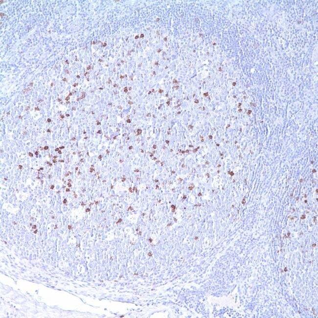 CD57 Antibody (MA1-35253)