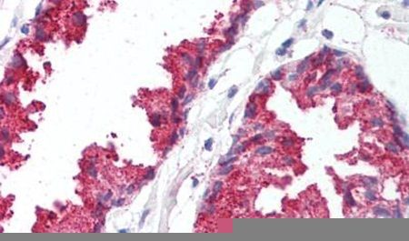 BACE1 Antibody (PA5-32672)