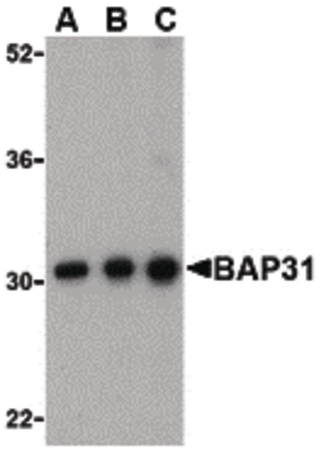 BAP31 Antibody (PA5-20194) in Western Blot