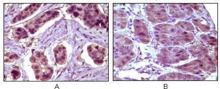 Bcl-10 Antibody (MA5-14756) in Immunohistochemistry