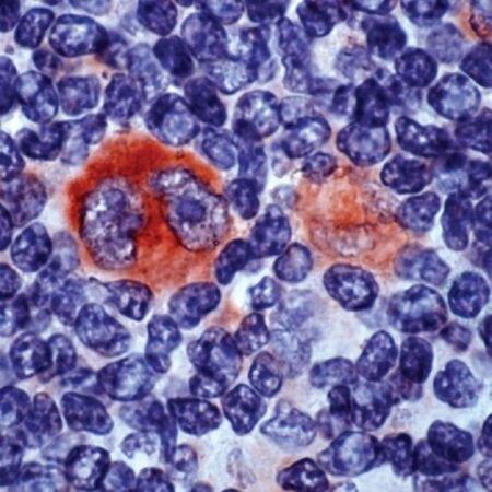 Bcl-X Antibody (PA5-32274) in Immunohistochemistry