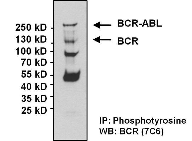 BCR-ABL Antibody (MA1-153) in Western Blot
