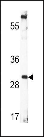 BDNF Antibody (PA5-15198) in Western Blot