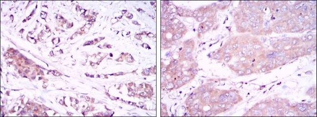 Beclin 1 Antibody (MA5-15825)