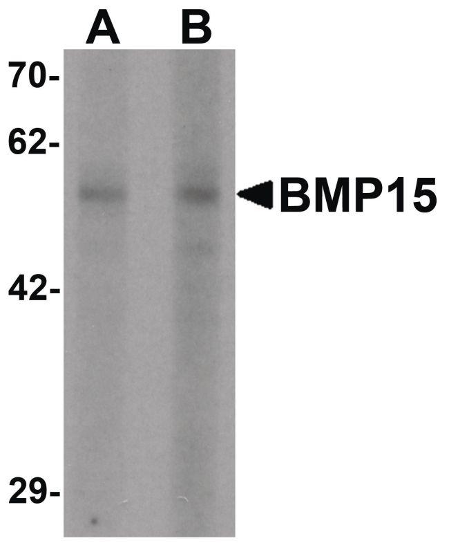 BMP-15 Antibody (PA5-34401) in Western Blot