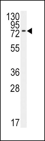BMPR1A Antibody (PA5-11856) in Western Blot