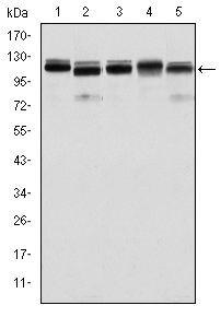 BMPR2 Antibody (MA5-15827) in Western Blot