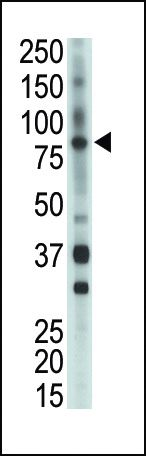 ETK Antibody (PA5-14769) in Western Blot
