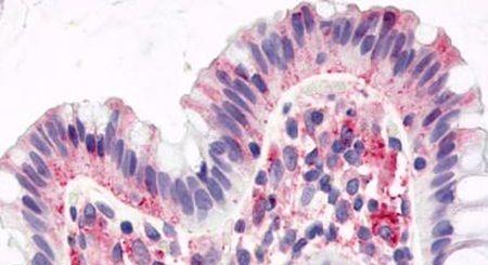 GPR15 Antibody (PA5-33641) in Immunohistochemistry (Paraffin)