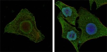 B-Raf Antibody (MA5-15495) in Immunofluorescence