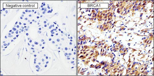 BRCA1 Antibody (MA1-137) in Immunohistochemistry (Paraffin)