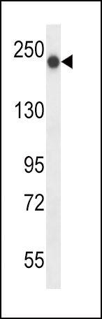 BRIP1 Antibody (PA5-24161) in Western Blot