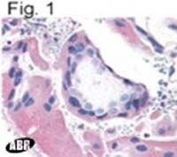 Bombesin Receptor 3 Antibody (OPA1-15483)
