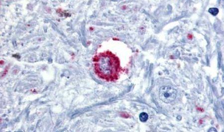 Bombesin Receptor 3 Antibody (PA5-32675) in Immunohistochemistry (Paraffin)