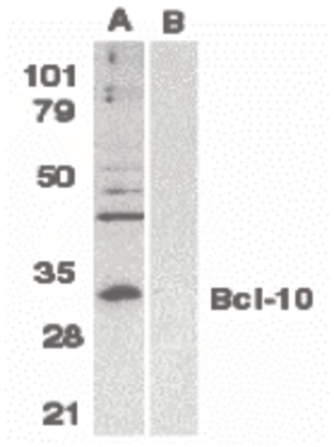 Bcl-10 Antibody (PA5-19931) in Western Blot