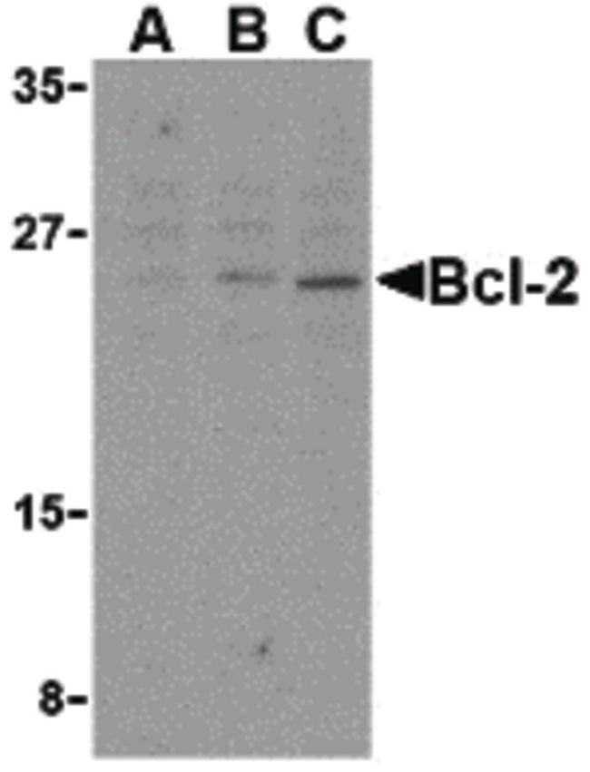 Bcl-2 Antibody (PA5-20069) in Western Blot