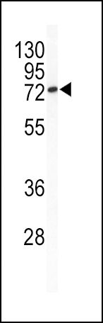 BCL6 Antibody (PA5-14259) in Western Blot