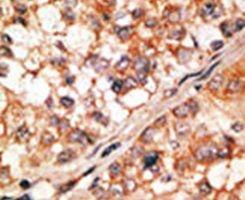 Bim Antibody (PA5-11385) in Immunohistochemistry