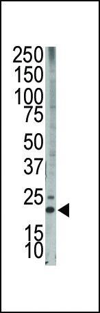 Bim Antibody (PA5-11385) in Western Blot