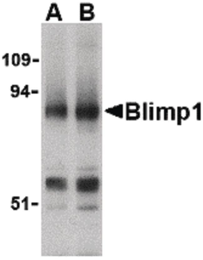 Blimp-1 Antibody (PA5-20313) in Western Blot