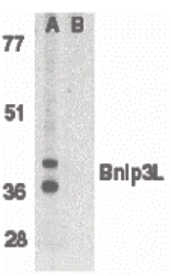 BNIP3L Antibody (PA5-19958) in Western Blot