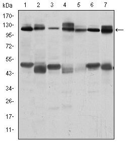 c-Cbl Antibody (MA5-15885) in Western Blot