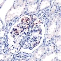 Complement C4d Antibody (PA1-39488) in Immunohistochemistry