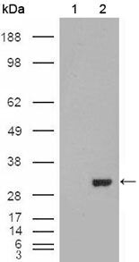 Carbonic Anhydrase I Antibody (MA5-15418) in Western Blot