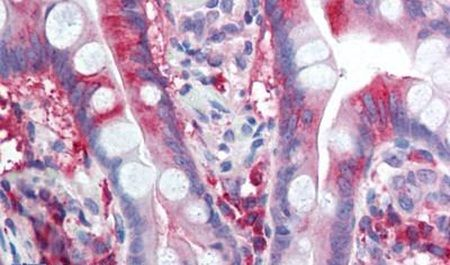 Calcium Channel 1C Antibody (PA5-33375) in Immunohistochemistry (Paraffin)