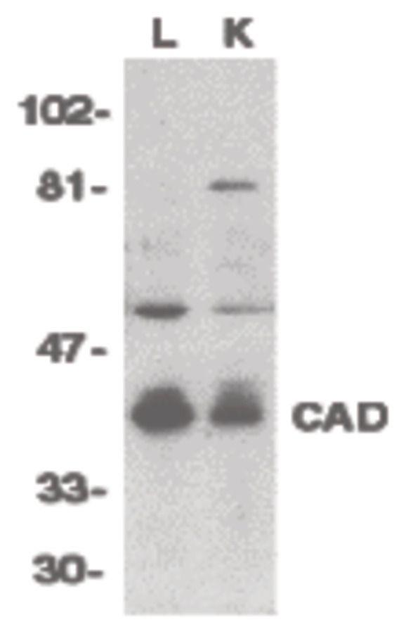 DFFB Antibody (PA5-19892) in Western Blot