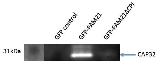 CAPZB Antibody (PA5-12520)