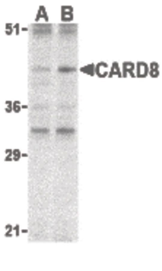 CARD8 Antibody (PA5-20031) in Western Blot