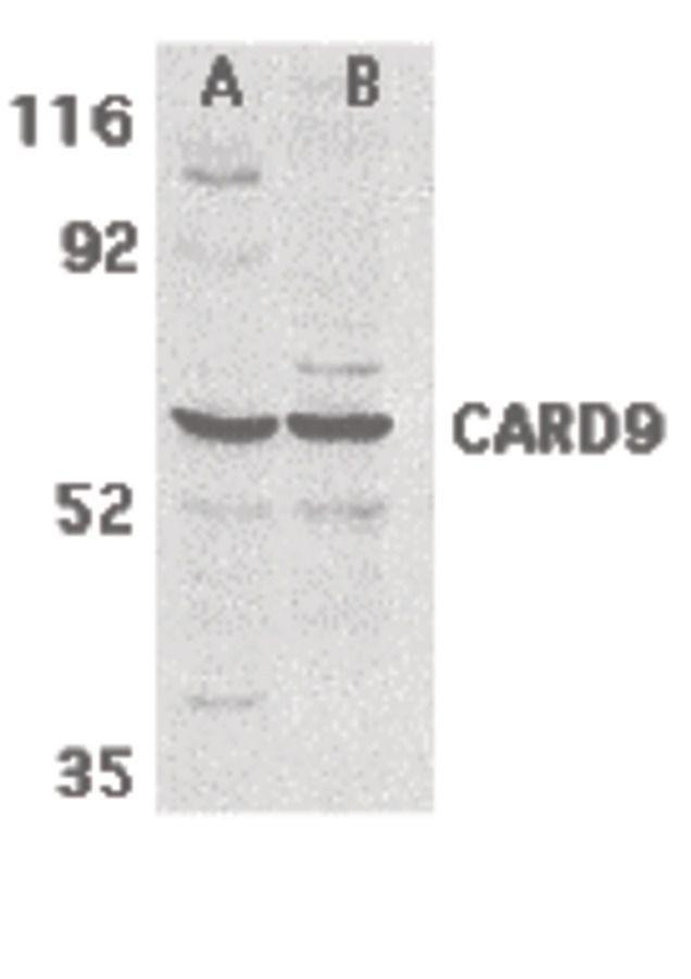 CARD9 Antibody (PA5-19993) in Western Blot