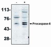 Caspase 6 Antibody (MA1-12558) in Western Blot