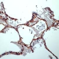 Caveolin 1 Antibody (PA1-37260)