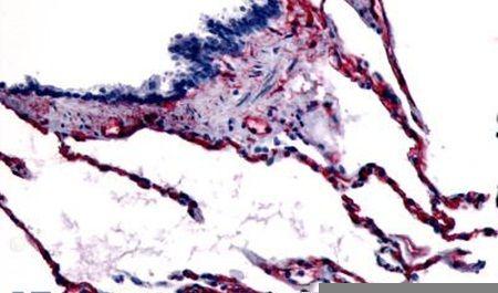 Caveolin 1 Antibody (PA5-32689) in Immunohistochemistry (Paraffin)