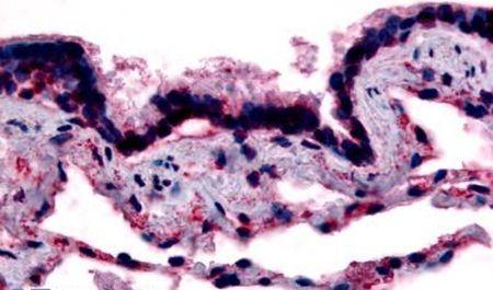 Caveolin 1 Antibody (PA5-32691) in Immunohistochemistry (Paraffin)
