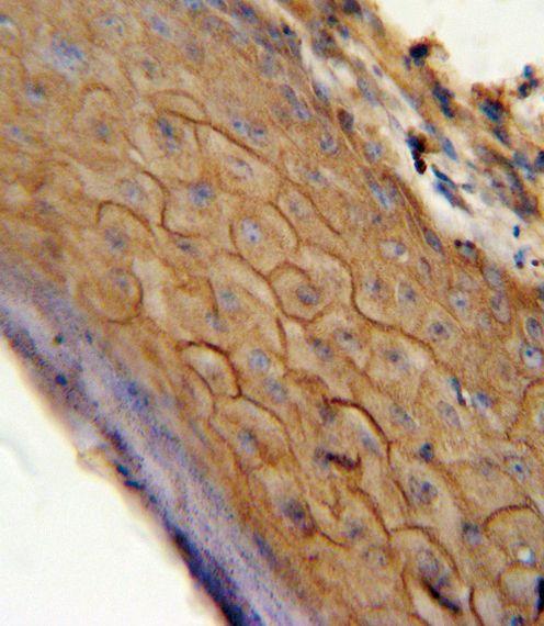 CNR2 Antibody (PA5-24168) in Immunohistochemistry