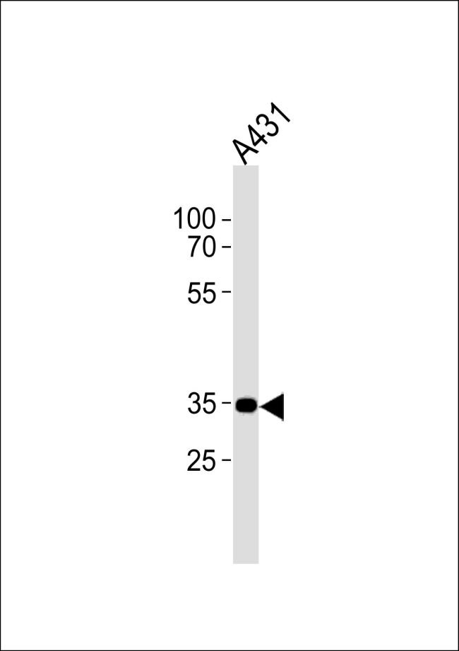 CNR2 Antibody (PA5-24168) in Western Blot