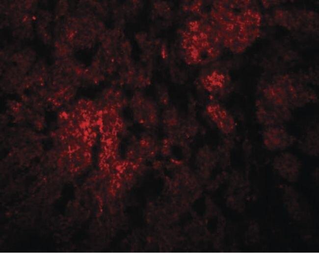 CCDC106 Antibody (PA5-21003) in Immunofluorescence